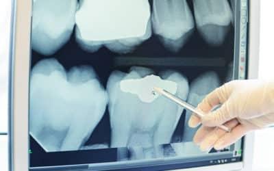 Daten in Echtzeit – der RFID-Zahn macht es möglich
